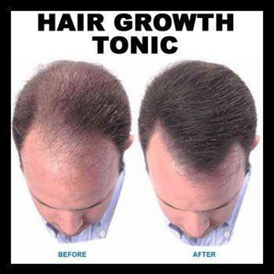 Picture of Regrowth Hair Tonic & Shampoo Treatment Pack